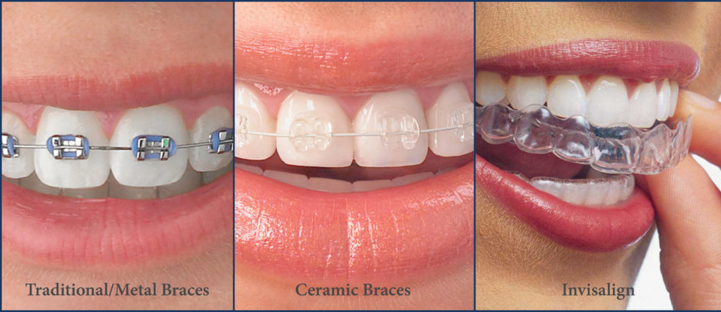 What is Orthodontics | What is an Orthodontist | When To See an Orthodontist | How Do I Know if I Need Orthodontics | Different Types of Orthodontic Treatments | Bubbly Moments