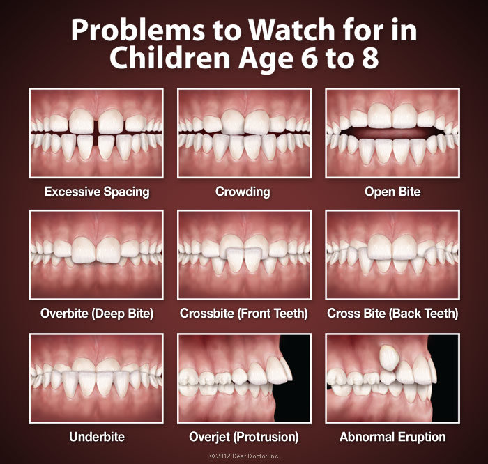 Orthodontic Problems | What is Orthodontics | What is an Orthodontist | When To See an Orthodontist | How Do I Know if I Need Orthodontics | Different Types of Orthodontic Treatments | Bubbly Moments