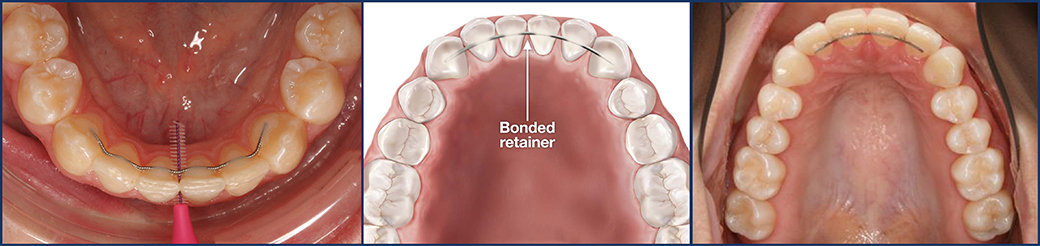 After Braces | Permanent Retainer | Types of Retainers | What is a Retainer | Purpose of Retainer | Hawley Retainer | Essix Retainer | Vivera Retainers | Fixed Retainer | Orthodontics | Orthodontist | Bubbly Moments